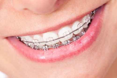 Private cosmetic dentist stonehouse orthodontics six month ceramic braceeg solutioingenieria Gallery