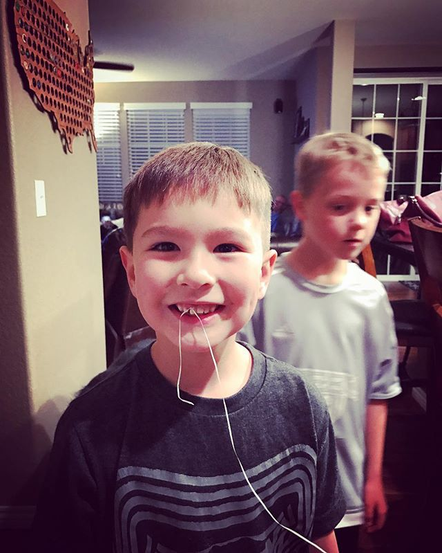 Bye bye front tooth. The tooth fairy is going broke quickly with the way this kid is losing teeth.