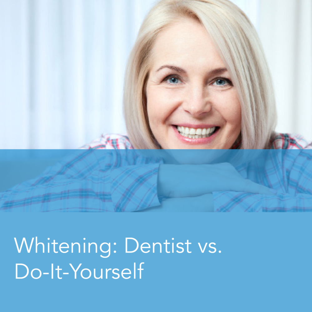 Teeth Whitening: Dentist vs. Do-it-Yourself