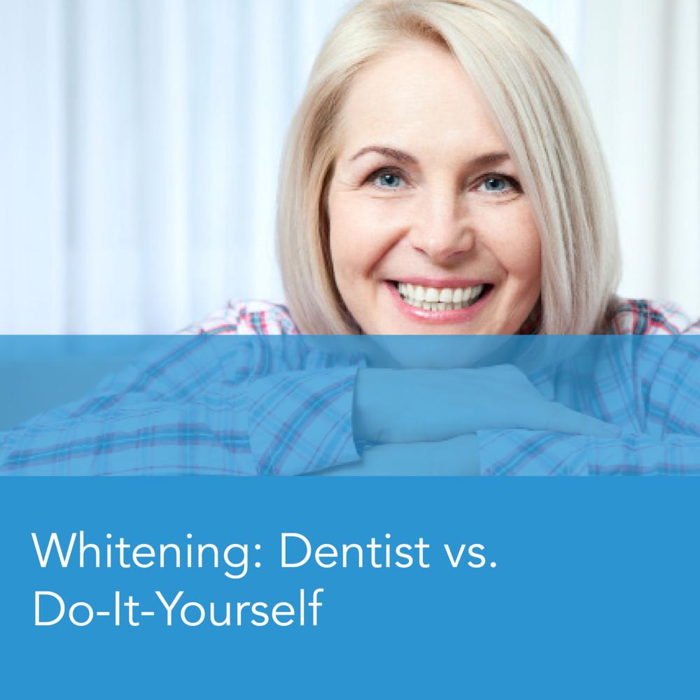 Teeth Whitening: Dentist vs. Do-it-Yourself