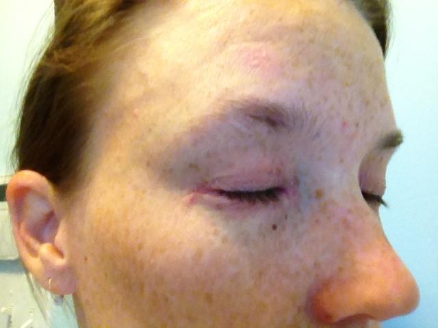 My Struggle With Eye Psoriasis Sara C Walker