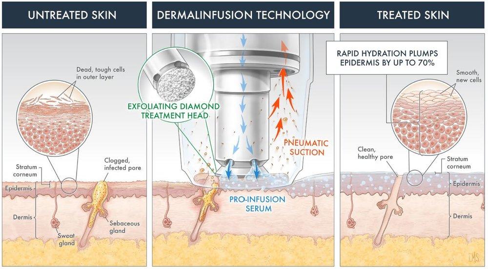 Dermalinfusion technology.JPG