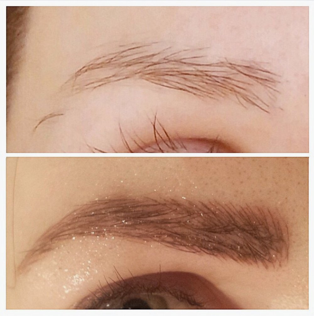 A before and immediately after having my eyebrows microbladed. They are covered in a serum in this photo.