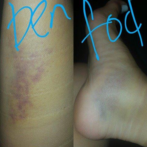Nina fik en hæmatom i benet og foden efter en pole-skade og kunne ikke træne i 2 mdr.