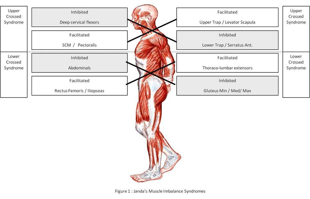 http://www.jandaapproach.com/wp-content/uploads/2010/10/JandaSyndromes.jpg