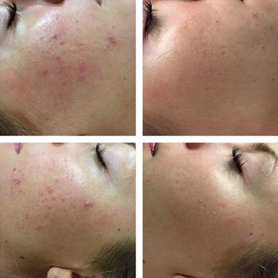 Acne - Before & After   (These images have not been digitally modified)