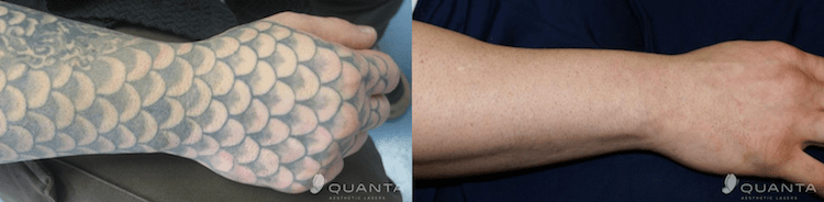 Naples-Florida-Laser-Tattoo-Removal.png