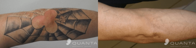Tattoo-Removal-Elbow-Before-and-After.png
