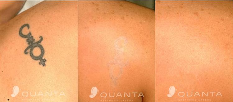 Tattoo-Removal-Back-Shoulder-Before-After.png
