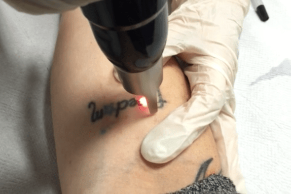 Naples-Laser-Tattoo-Removal.png