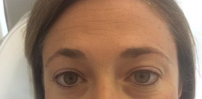 Permanent Eyeliner - After
