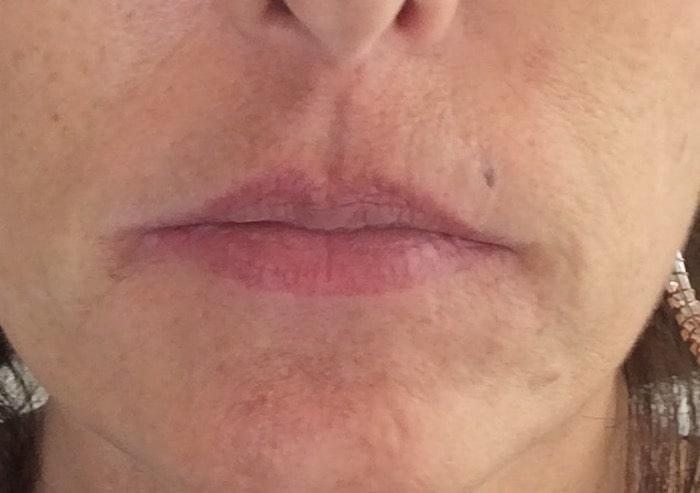 Full Lips-Before