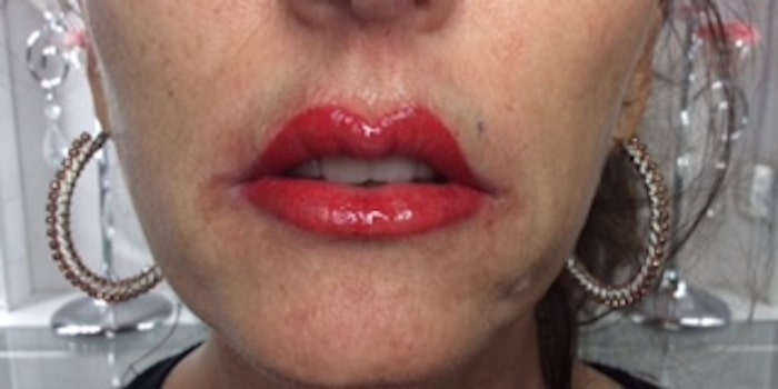 Full Lips-After