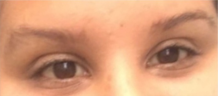 Eyebrow Shaping-Before