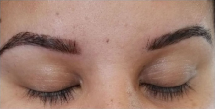 Eyebrow Shaping-After