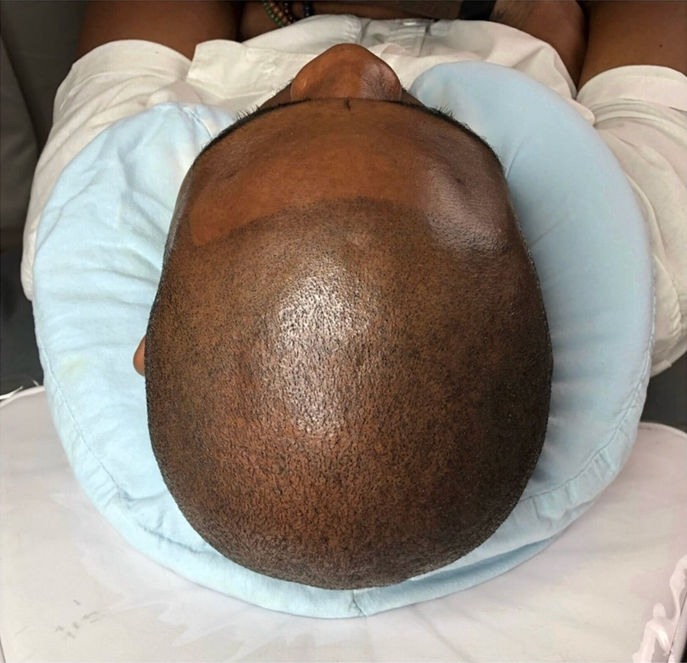 Scalp Micropigmentation-After