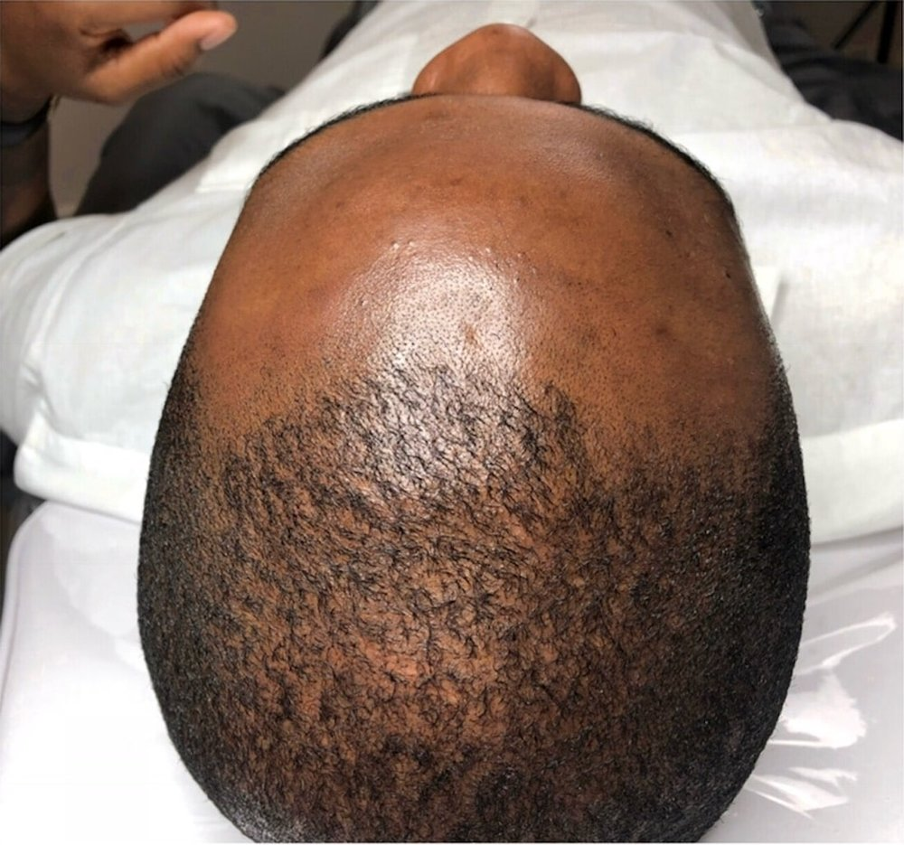 Scalp Micropigmentation-Before