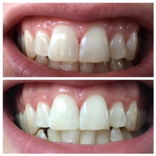 Phillips ZOOM! QuickPro before and after.  Patient had no sensitivity after treatment.