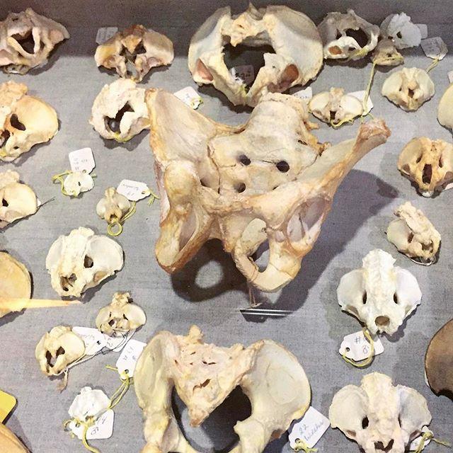 Teeny tiny pelvic bones #pelvichealth #bodies #body #bones #medicine #anatomy #feminism