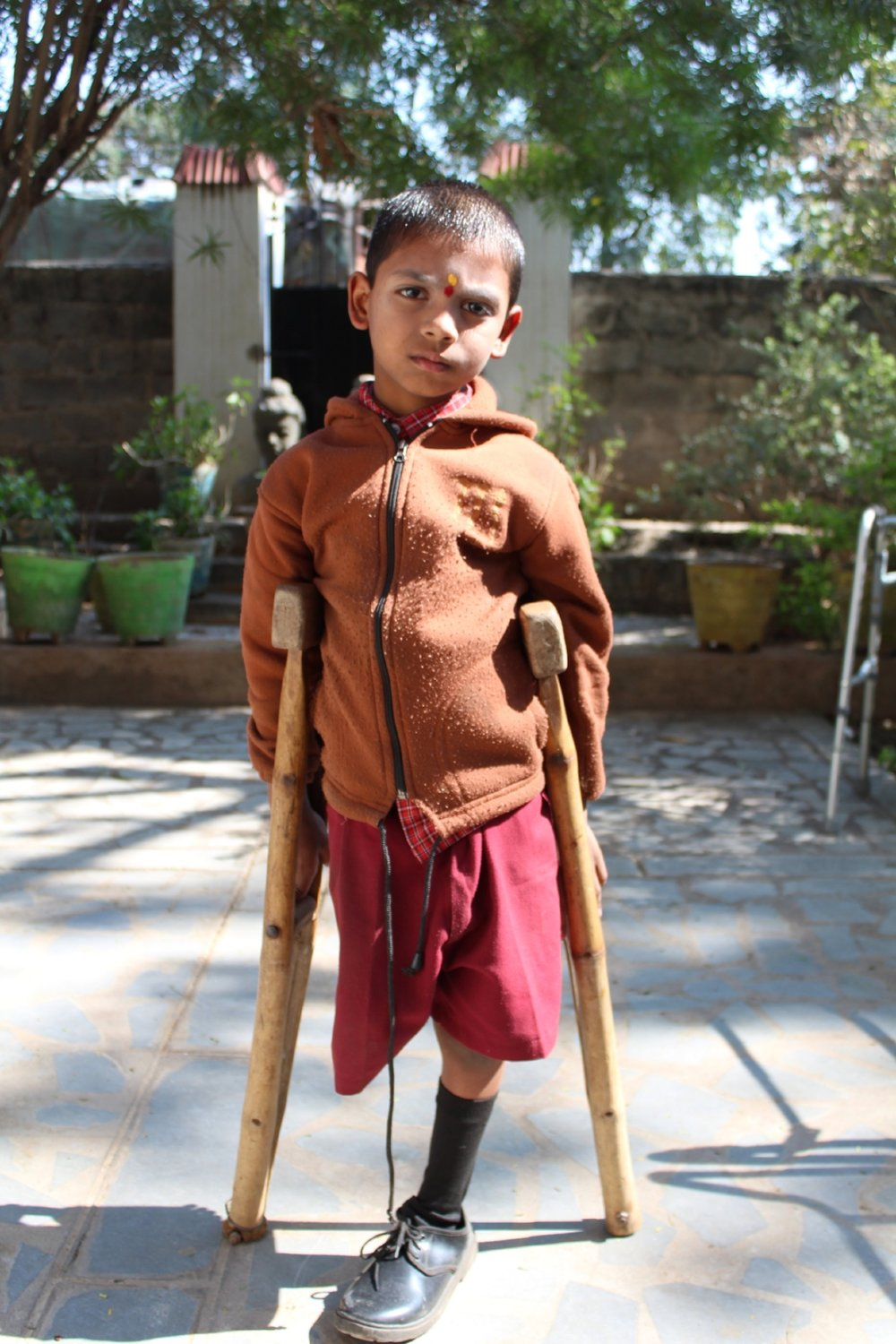 A child in need of new crutches in Hyderabad, India (Winter, 2017).