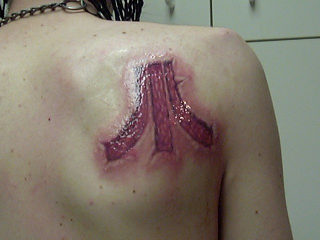Color Realistic 'Atari' Wound Tattoo  Although I never got a good healed photo of this tattoo, to my surprise I came across this photo online.  It was pictured above an internet forum, with a conversation of people discussing whether it was an actual cut or peeling, or if it was a tattoo, with very mixed opinions on the matter. So I did step in and comment that yes, it is a tattoo, and I am 100% certain, as I am the one who made the tattoo.  So here is one time in my life that I can say I was truly flattered, and could actually accept a compliment. Objective achieved!    (Although the heavy coat of vaseline on it here after the session certainly does not hurt the effect.)