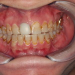 Excessive Tooth Staining