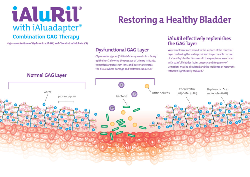 iAluril_Poster_St01-1.jpg