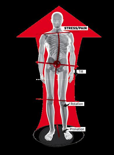 Pronation chain affect