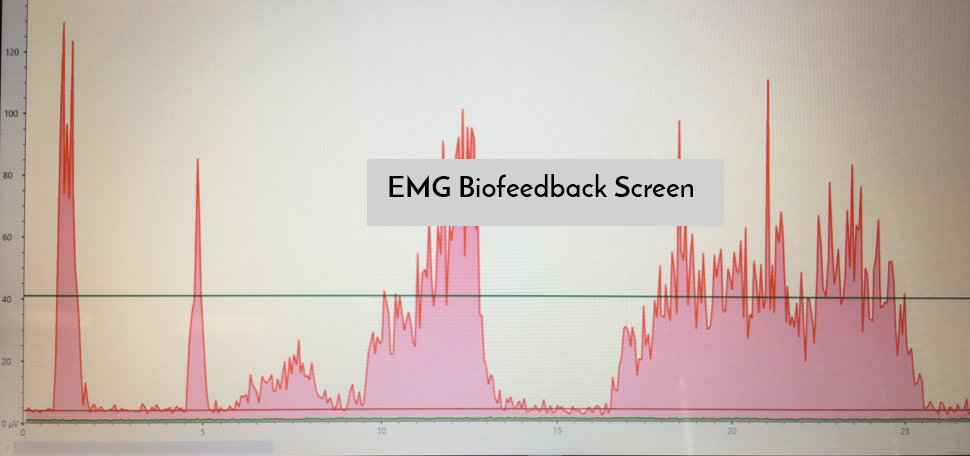 Example of an EMG biofeedback screen. The spikes are the pelvic floor contracting (The area in the red is the muscle contracting). I look to see the quality and control of the contraction, the hold, and the relaxation. This is also helpful for my clients because it gives them a visual to correspond with what they feel their muscles doing.