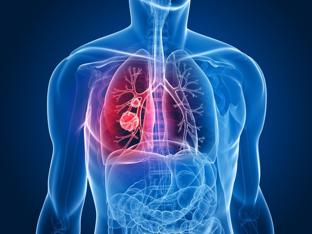 Diagram of lungs affected by Mesothelioma.