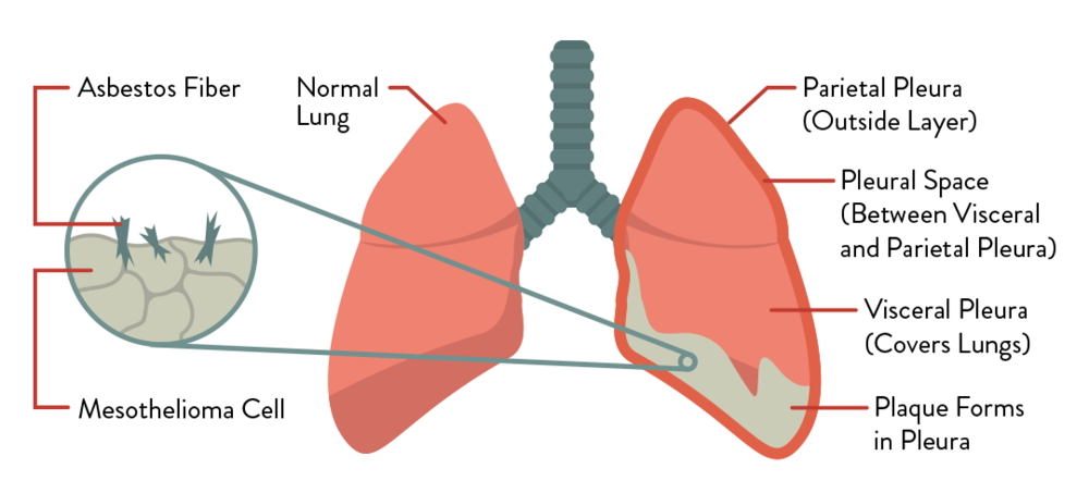 Diagram of how Pleural Mesothelioma affects the lungs.
