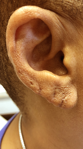 Earlobe Repair Before and After Pictures Columbus, OH