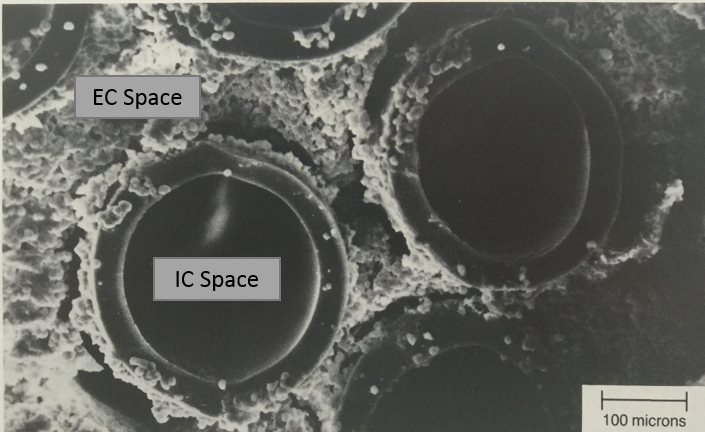 Electron Micrograph image of the hollow fiber capillaries with a cell mass growing in the EC space.