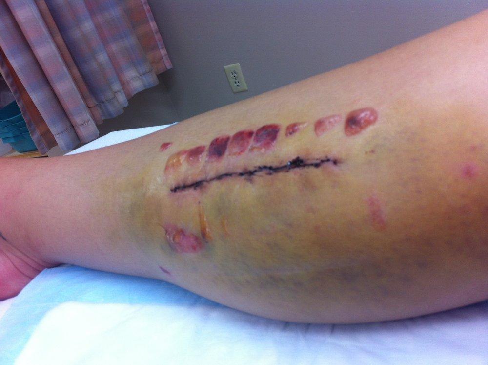 Sarah's leg just after surgery.