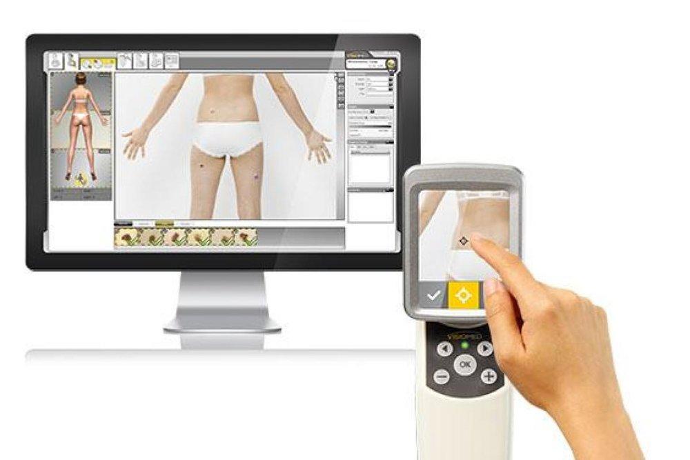 Skin Check Technology