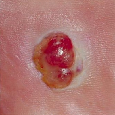 Medium Amelanotic Melanoma Skin Cancer Picture