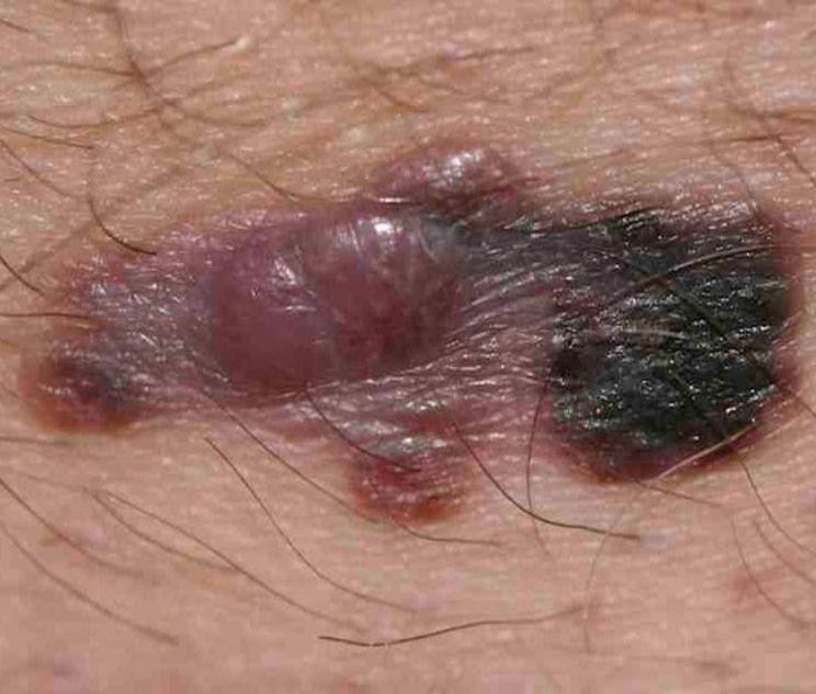 Nodular Melanoma Skin Cancer