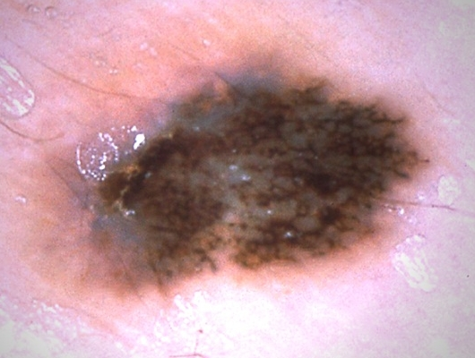 Superficial Spreading Melanoma Picture