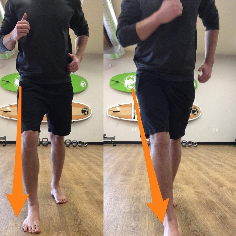 Knee Valgus.jpg