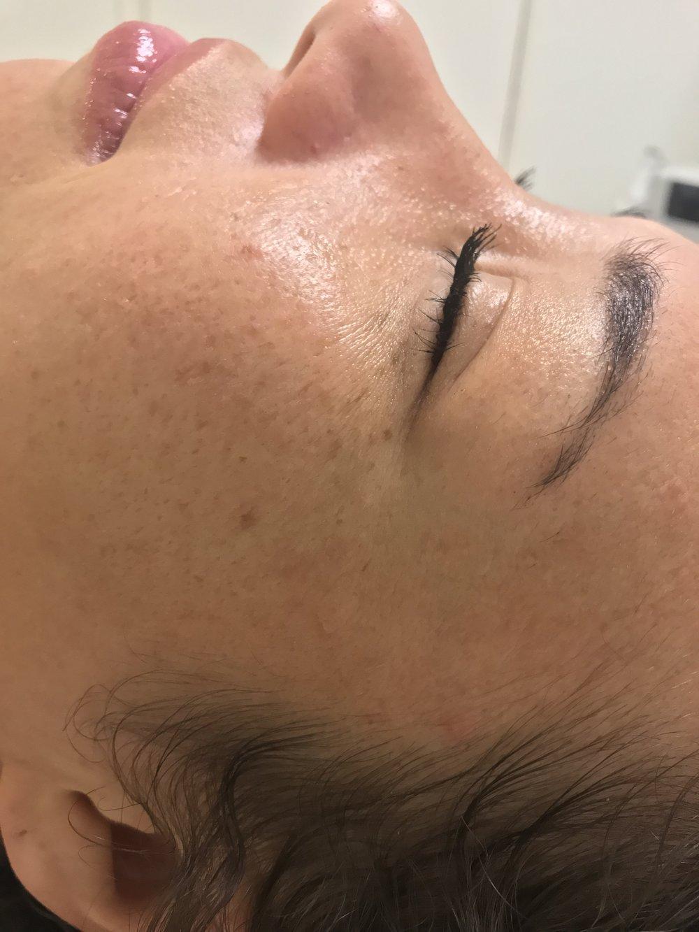 before Qi beauty facial treatment