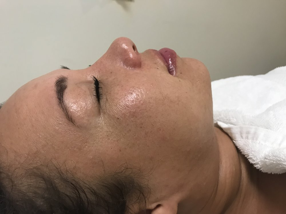 After Qi beauty Facial Treatment
