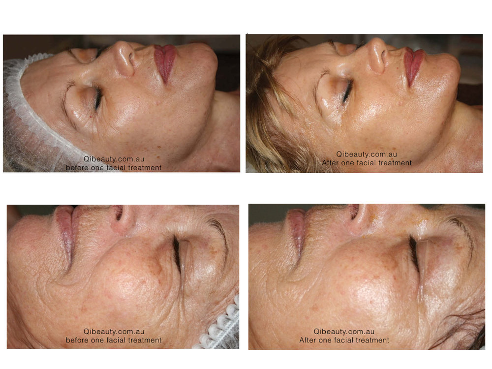 Skin following One Qi beauty Facial treatment. Customised treatments to work with the Stratum Corneum, strengthen skin barrier function, balance pH,  and create a healthy environment for healthy flora to thrive. Skin appears noticeably clearer, reduce redness, balance in skin oils and lustre.
