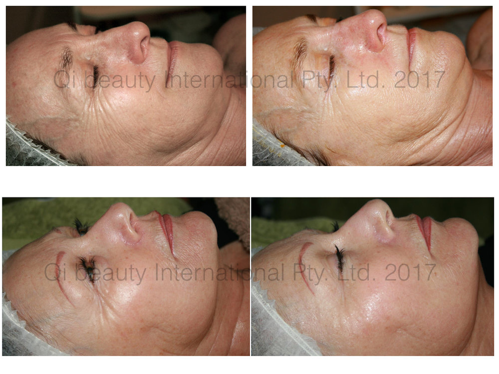 before and after results following one Qi beaut Facial Treatment