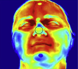 Forehead thermal image.jpeg