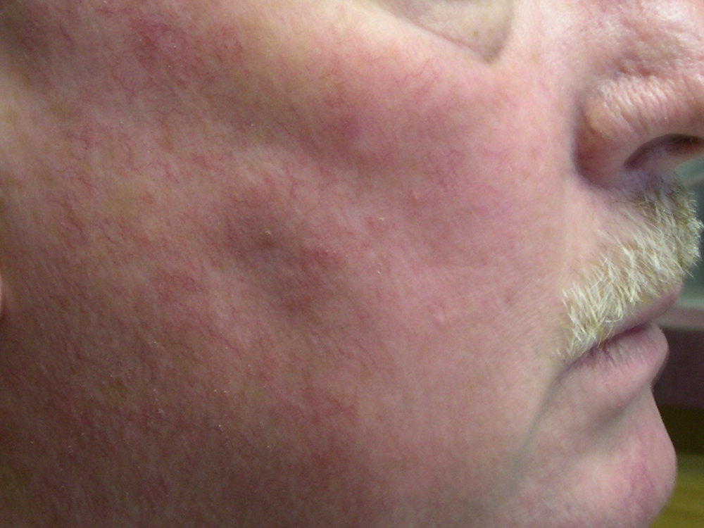 AFTER INTENSE PULSED LIGHT THERAPY