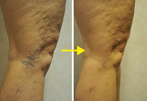 BEFORE & AFTER SCLEROTHERAPY