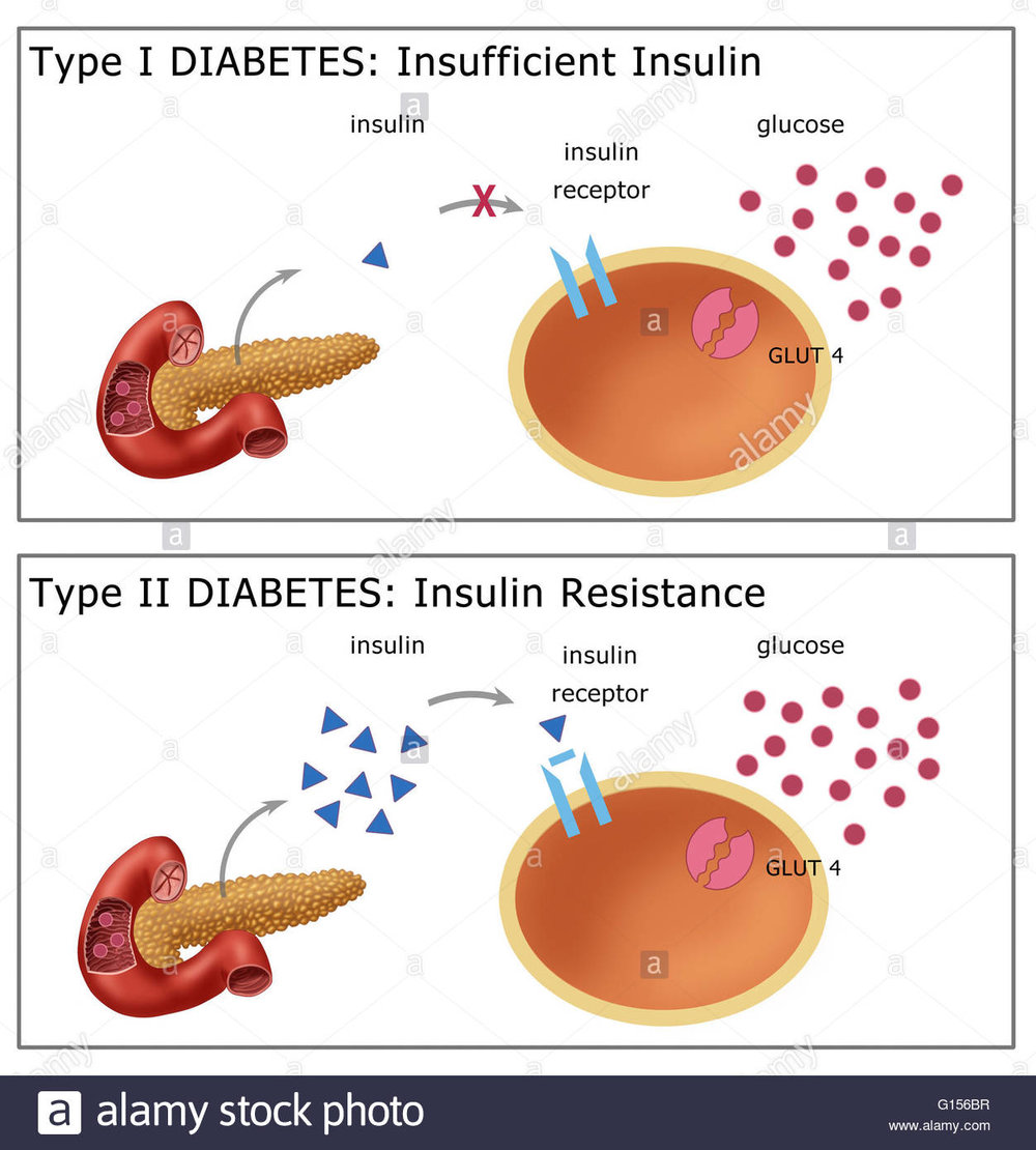 illustration-comparing-type-i-diabetes-top-where-the-body-fails-to-G156BR.jpg