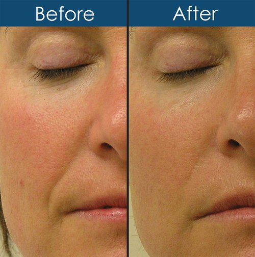 Before and After Hydrafacial MD Treatment