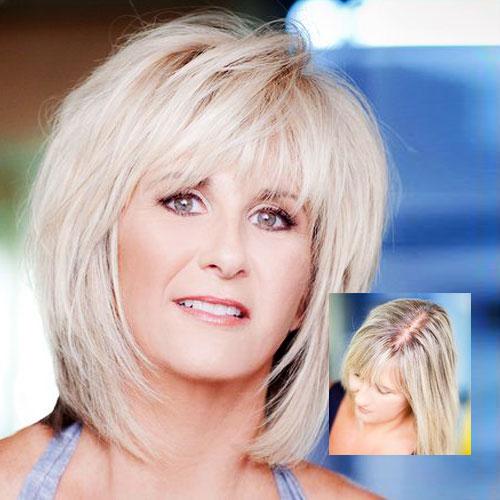 womens hair loss treatment minneapolis