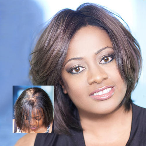 womens non-surgical hair replacement systems minneapolis